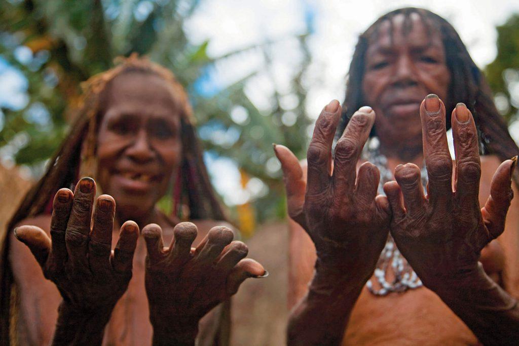 ...a kad je netko od njihovih fatalno stradao, jadikovali su i djevojčicama sjekli prste.